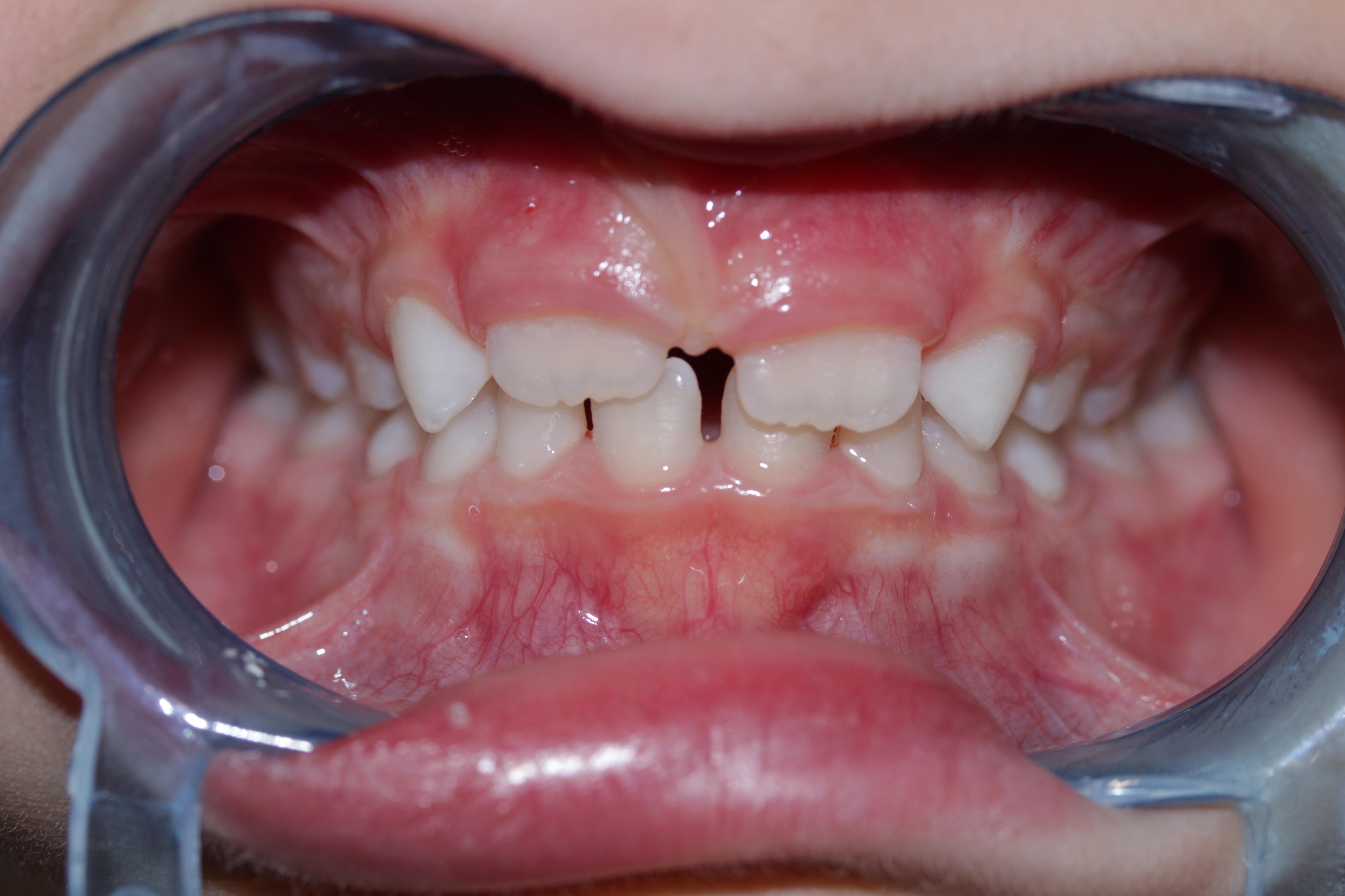 agenesia dentale milano il